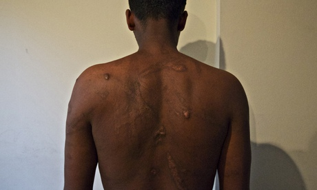 An Eritrean man shows the wounds he says traffickers inflicted on him