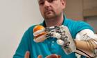 Dennis Sorensen artificial hand