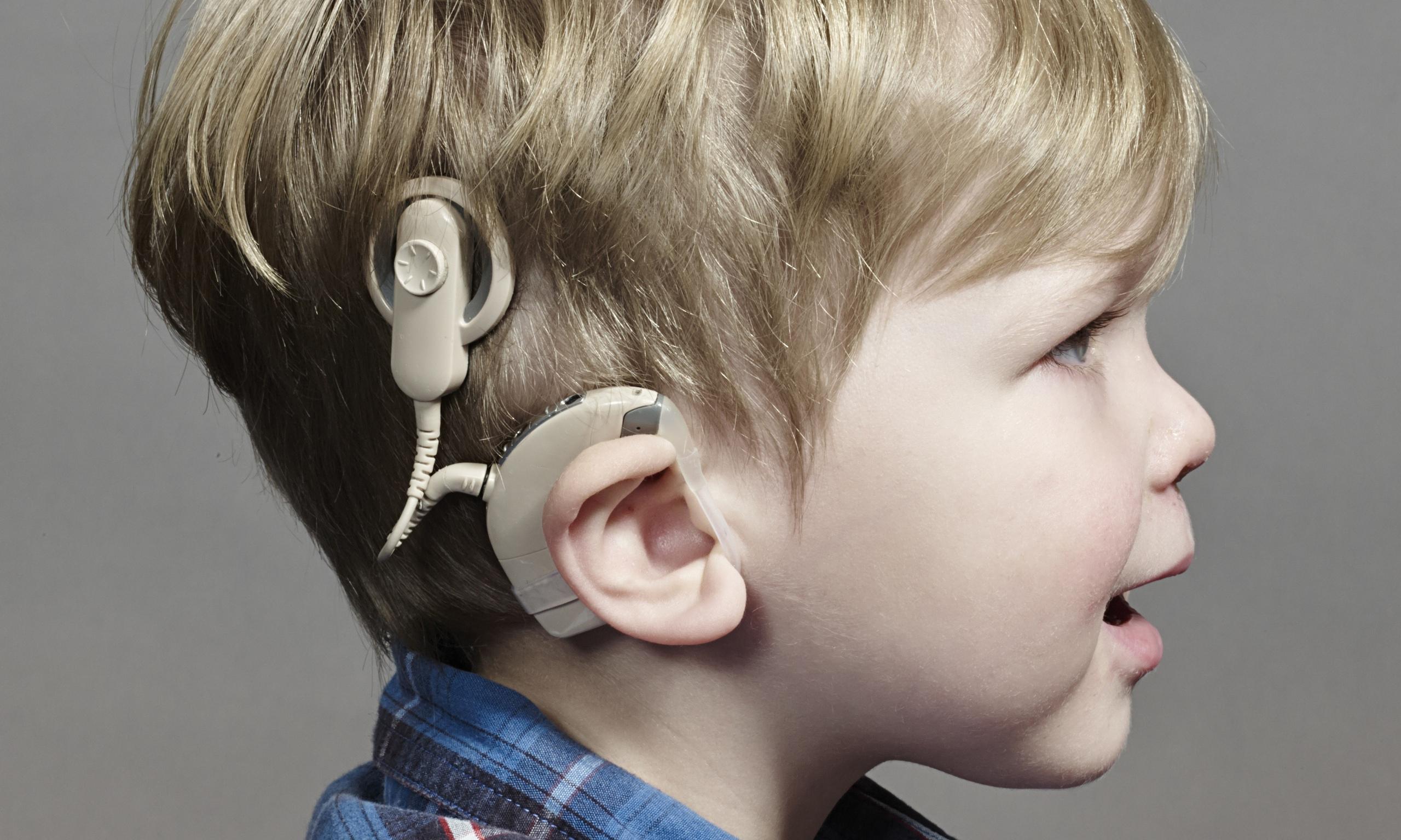 Фото детей в слуховых аппаратах