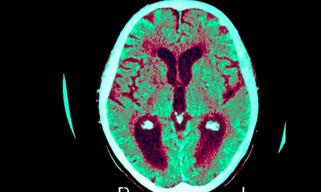 A scan shows the effect of Alzheimer's disease on the human brain
