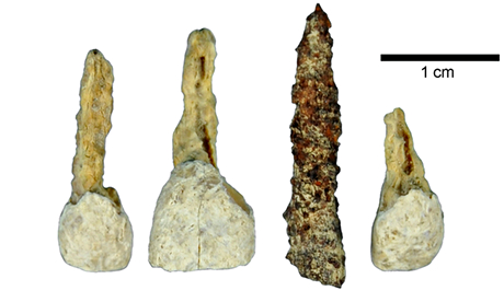 2,300-year-old iron false tooth