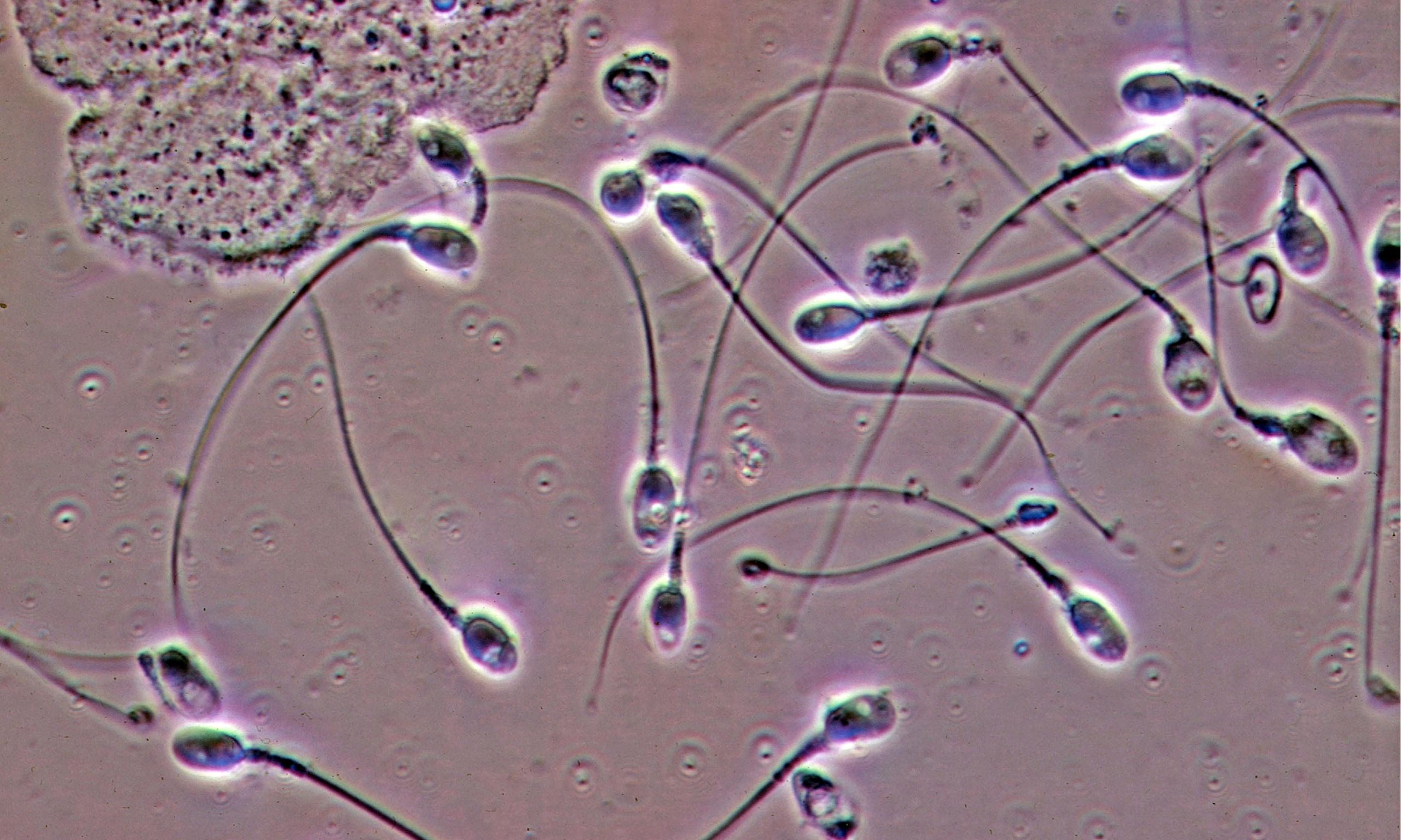 Сперма в микроскопе эта