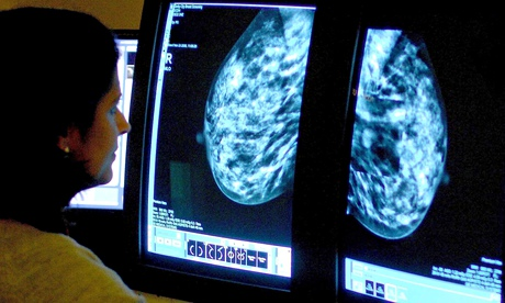 Single-dose radiotherapy could transform breast cancer treatment