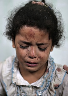 Najia Warshagha was treated for injuries caused by an Israeli strike at a UN school in Jebaliya refugee camp, in Beit Lahiya, Gaza. Photograph: Khalil Hamra/AP
