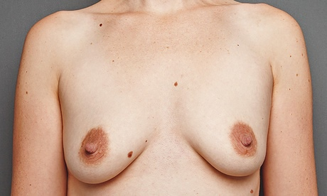 breasts: 33-year-old