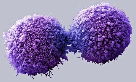 Most types of cancer largely down to bad luck rather than lifestyle or genes
