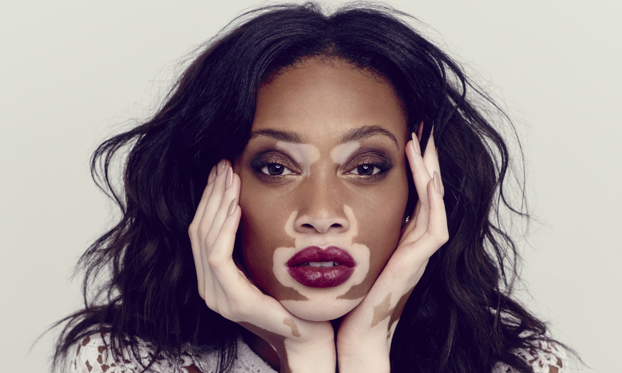 Chantelle model with vitiligo