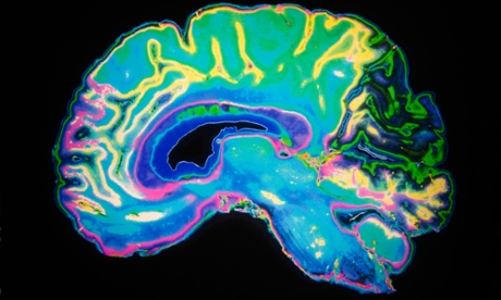 Alzheimer's researchers find molecule that delays onset of disease