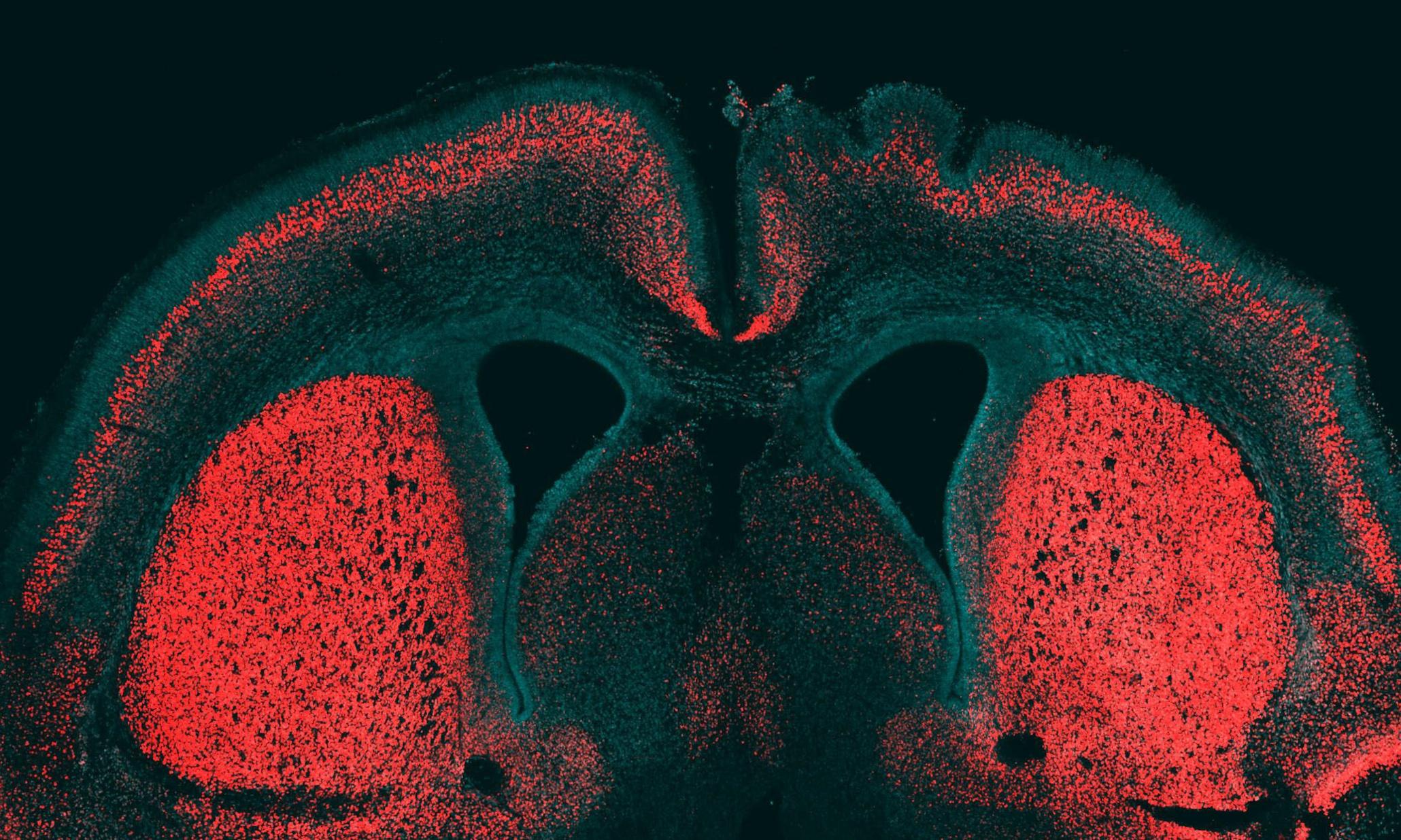 TBI & Neuroscience - Magazine cover