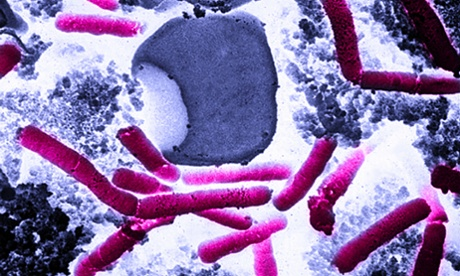 Anthrax: Pentagon accidentally sent bioweapon to as many as nine states