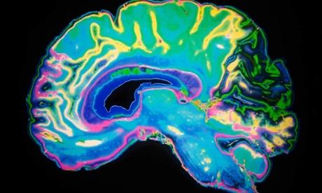 brain slide