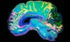 B8PB5Y Artificially Coloured MRI Scan Of Human Brain. Image shot 2009. Exact date unknown.mriscanbrainmagneticimageresonanceconceptmrimagneticresonanceimagescanbrainnervoussystemcutoutanatomyconceptideaintelligencethoughtmindmemorythinkingpeoplepersonsenilitysenilealzheimerscolorcoloredcolorhealthcaremedicinehumantechnologybiologysciencementalillnessdepressionhorizontalcopyspacedementia