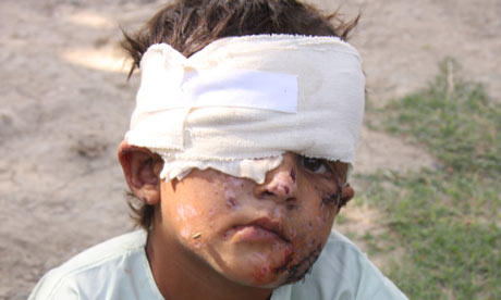 Shafiq, 6, lost his eye in an IED explosion