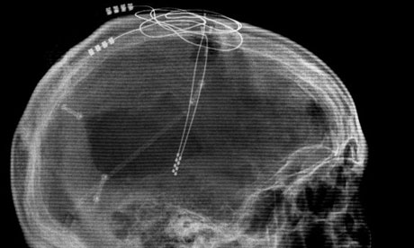 Lateral X-Ray image of the patient showing the DBS leads implanted. deep brain stimulation video grab