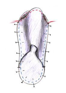Slippers, figure C