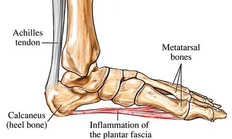 Pain On The Heel