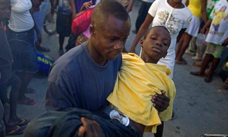 Symptoms cholera disease
