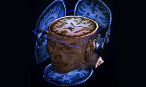 Phil Hogan's Brain Scan