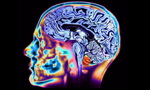 A healthy brain, as seen on an MRI scan. Photograph: Science photo library