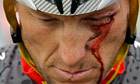 Lance Armstrong bleeds from a cut under his left eye after crashing during the Tour of California