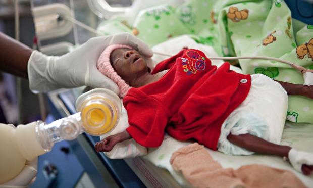 Premature births and developmental complications essay