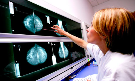 A radiologist examines mammograms for signs of breast cancer