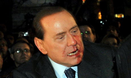 Silvio Berlusconi reacts after being assaulted in Milan