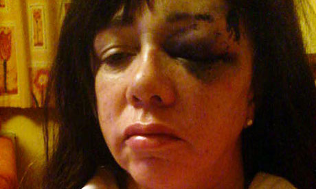Pamela Somerville, 59, after being assaulted by a police officer in custody in Wiltshire