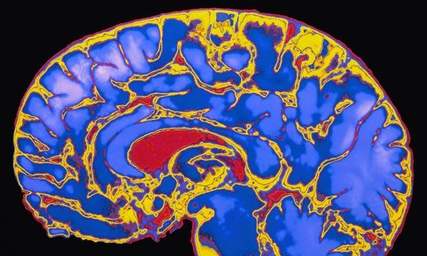 Childhood stimulation key to brain development, study ...