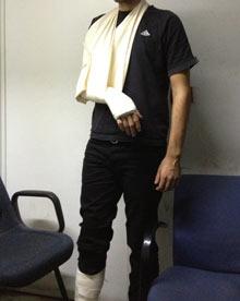 Protester injured during arrest in Greece