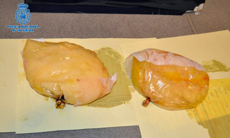 cocaine breast implants spain
