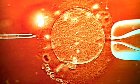 IVF treatment sperm being injected into an egg