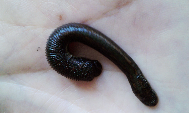 Leech Therapy For Varicose Veins | other