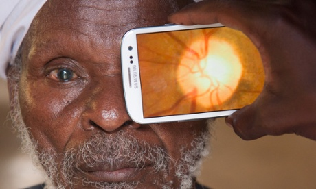 Eye scanner … The Peek app turns any camera phone into a portable eye examination kit.