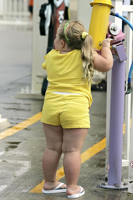Obesitas girls Kostenlose xvideos