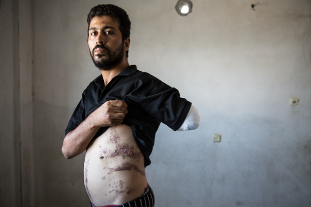 Nabil Siyam lost his wife and children as well as his arm when the family tried to flee a strike