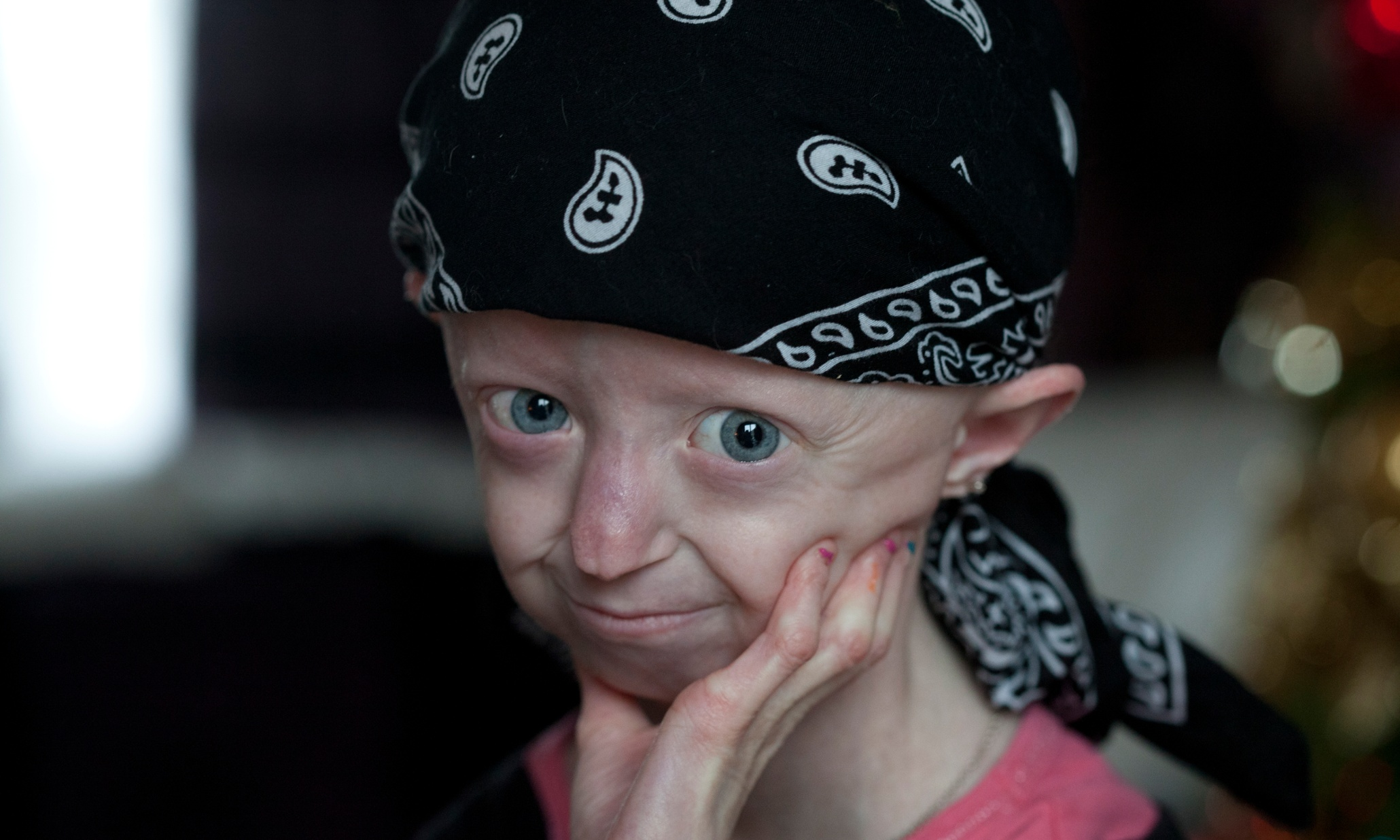 Progeria campaigner Hayley Okines dies at 17 | UK news ...  Progeria campai...