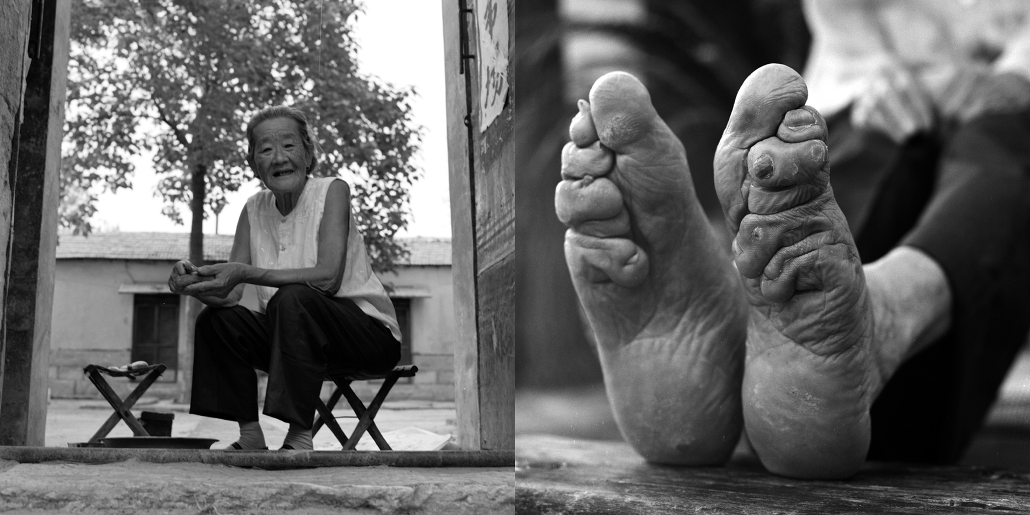 Chinese footbinding