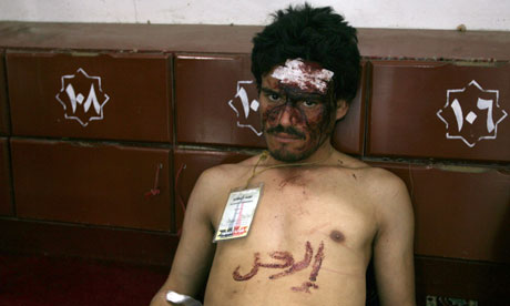 An injured Yemeni protester in the mosque of Sana'a university